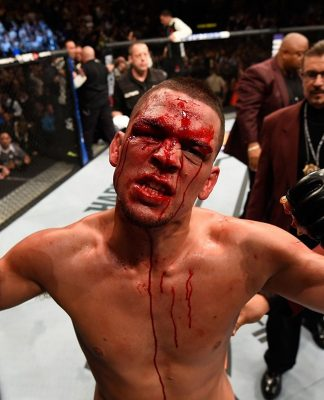 Dana White Says Nate Diaz UFC Career Possibly Dead; Diaz Claps Back